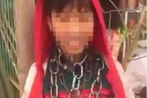 Thông tin bất ngờ về bé trai bị quấn dây xích quanh cổ ở Thanh Hóa gây xôn xao dư luận