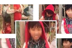 Vụ cháu bé bị chú dùng xích khóa cổ: Người chú có thể bị xử lý hình sự