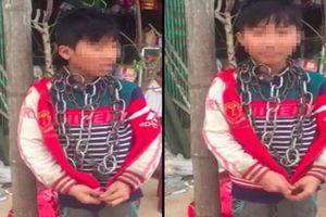Thanh Hóa: Bé trai 13 tuổi bị xích quấn quanh cổ