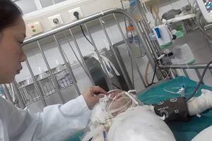 Bé gái hơn 2 tuổi bỏng nặng khi rơi vào hố vôi
