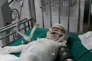 Xót thương cháu bé 2 tuổi ngã vào hố vôi đang sôi, bỏng trên 80% cơ thể