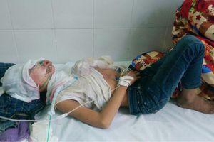 Nhuộm tóc đỏ, hai thiếu niên bị dội xăng lên người đốt bỏng nặng