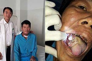 Phẫu thuật thành công ung thư lưỡi bằng vi phẫu tạo hình