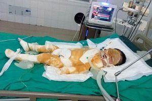 Xót xa cảnh bé 4 tuổi toàn thân quấn bông băng nằm trên giường bệnh