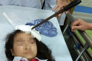 Nam sinh lớp 7 phóng dao cắm vào trán bạn gái cùng lớp