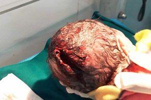 Trẻ sơ sinh rách đầu do sản phụ tự sinh ở nhà, mẹ chồng lấy dao rạch cho dễ đẻ
