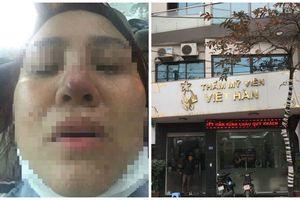 Suýt hoại tử thành thảm họa thẩm mỹ khi nâng mũi tại TMV Việt Hàn