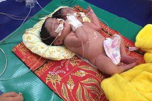 Campuchia: Em bé chào đời có 2 đầu, nặng 6,8kg