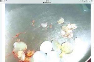Lấy hơn 30 trứng sán và ấu trùng ra khỏi não của bệnh nhân