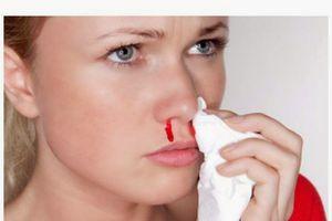 Bài thuốc chữa chảy máu cam ở người lớn