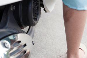 Làm thế nào để vết thương do bỏng bô xe máy không để lại sẹo thâm?