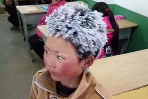 Cậu bé tóc đóng băng phải nghỉ học sau một tuần chuyển trường
