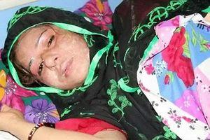Chồng tạt acid vợ vì không sinh được con trai