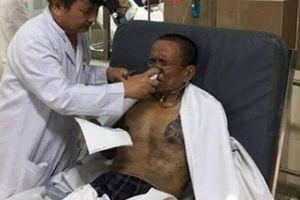Hơn 60 người nhập viện trong vụ cháy chung cư Carina