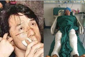 Sao võ thuật gặp tai nạn phim trường: Người ngồi xe lăn, kẻ suýt bị mù