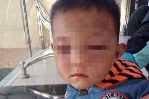 Bé trai 2 tuổi thâm tím mặt mày vì cha dượng bạo hành