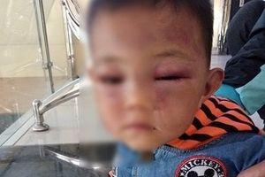 Cha dượng bạo hành bé trai 2 tuổi: Phẫn nộ về lời khai của người cha tàn độc