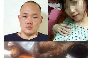 Hành trình truy bắt kẻ tẩm xăng phóng hỏa khiến 2 cô gái bỏng nặng