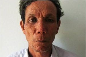Phú Yên: Mẹ già bại liệt 86 tuổi bị con trai đánh đập dẫn đến tử vong
