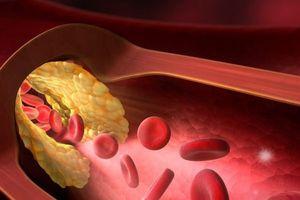 Mỡ máu cao – Dấu hiệu không rõ ràng nhưng ai cũng có thể gặp phải