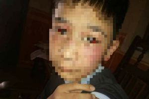 Điều tra vụ bé trai 14 tuổi ở Hà Nội bị bố và mẹ kế bạo hành