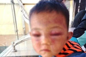 Nghệ An: Cha dượng đánh tím mặt con riêng của vợ không bị truy cứu hình sự