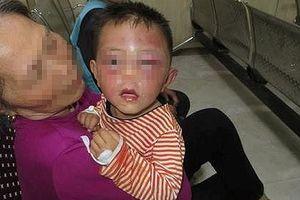 Không truy cứu trách nhiệm hình sự cha dượng đánh bé 2 tuổi nhập viện
