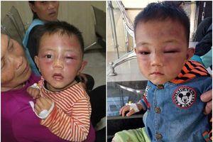 Vụ bé 2 tuổi bị đánh đập thâm tím mặt: Không xử lý vì cha dượng bị bệnh tâm thần