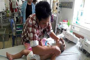 Bố mẹ đi vắng, bé 19 tháng tuổi bị ong đốt nguy kịch