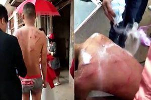 Kinh hãi chú rể bị đánh đập rồi xát muối vào vết thương ngay trong đám cưới