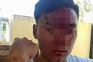 Cán bộ kiểm lâm bất ngờ bị 2 phụ nữ lạ mặt đánh gãy xương mũi