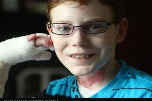 'Cậu bé bướm' biểu tượng cho nghị lực sống ở Canada vừa qua đời