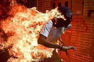 Ảnh người biểu tình Venezuela bốc cháy thắng giải ảnh báo chí thế giới