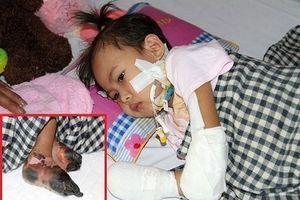 Bé gái 3 tuổi phải cắt bỏ tứ chi: 'Từ khi bị tháo khớp tay, cháu hay khóc và cáu gắt'