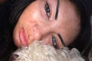 Người mẫu gần mù vì tiêm silicone đổi màu mắt