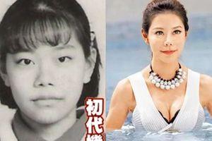 MC Đài Loan bị nhiều biến chứng sau 60 lần phẫu thuật thẩm mỹ