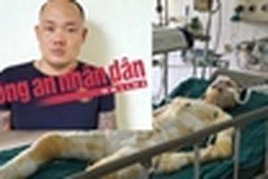 Cô gái bị bạn trai tẩm xăng đốt đã tử vong