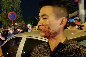 Hà Nội: Va chạm xế hộp, hai vợ chồng bị hành hung