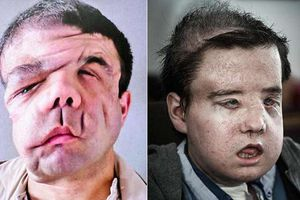 Người đàn ông có 3 khuôn mặt: 'Nó là tôi và mọi chuyện đang dần tốt lên'