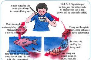 Lấy 800 con sán từ ống mật của người hay ăn gỏi cá