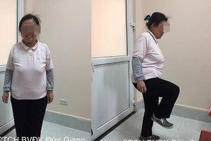 Nỗi khổ nhiều năm của người phụ nữ bó chân để giảm đau, bác sĩ phát hiện căn bệnh không ngờ