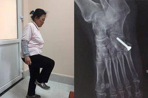 20 năm uống thuốc giảm đau đến loãng xương chỉ vì bị trật khớp