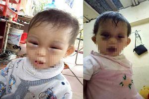 Chủ tịch TP Hà Nội yêu cầu báo cáo vụ bé gái bị tím mắt sau khi rời cơ sở mầm non