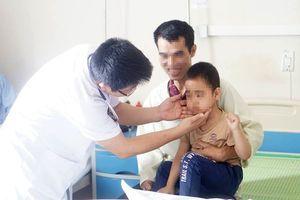 Tự chữa ho, bé 5 tuổi mọc ria mép bất thường