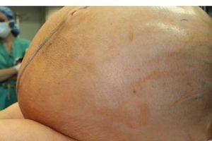 Cắt bỏ khối u nang buồng trứng 60 kg cho bệnh nhân