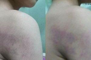 Cô giáo đánh học sinh lớp 1 bầm tím tay ở Hà Nội bị cảnh cáo