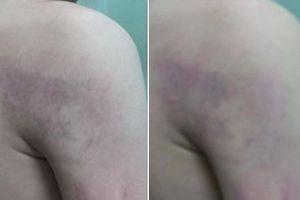 Cảnh cáo cô giáo đánh học sinh bầm tím người