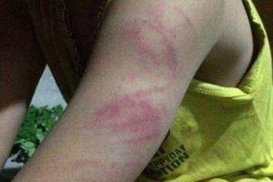 Nữ giáo viên cầm roi đánh bầm tím tay học sinh lớp 1 chỉ bị… phê bình, nhắc nhở