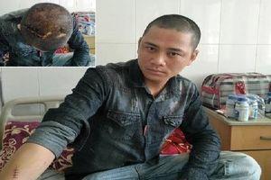 Nghệ An: Điều tra con Giám đốc xe buýt Phương Thảo vác dao chém nhân viên