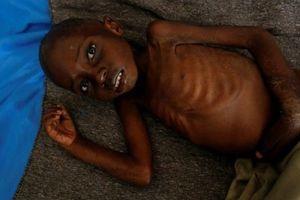 Xung đột ở CHDC Congo: 400.000 trẻ em đối mặt với nạn đói